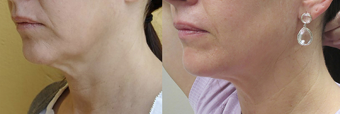 Forma-skin-tightening-before-and-after-Guelph-1