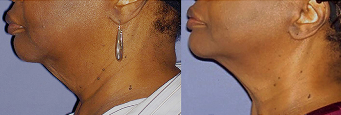 Forma-skin-tightening-before-and-after-Guelph-2