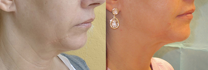 Forma-skin-tightening-before-and-after-Guelph-3