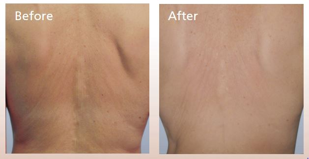 Forma-skin-tightening-before-and-after-Guelph-4