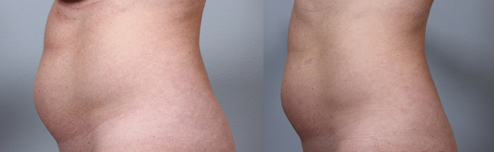body-fx-before-and-after-guelph-2