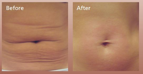 Forma-skin-tightening-before-and-after-Guelph-6