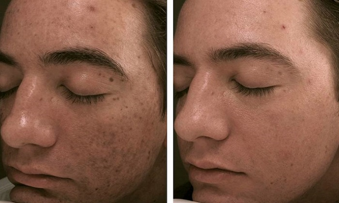 micropen-microneedling-before-and-after-1