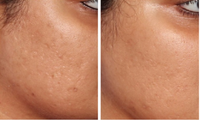 micropen-microneedling-before-and-after-3