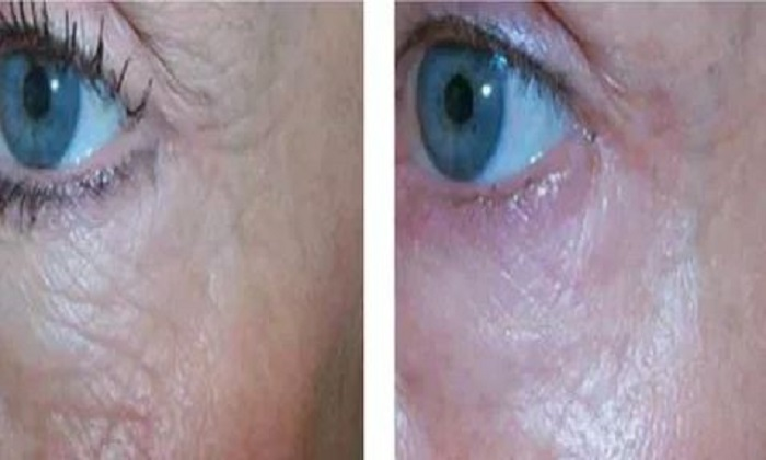micropen-microneedling-before-and-after-4