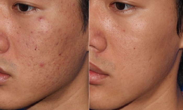 micropen-microneedling-before-and-after-5