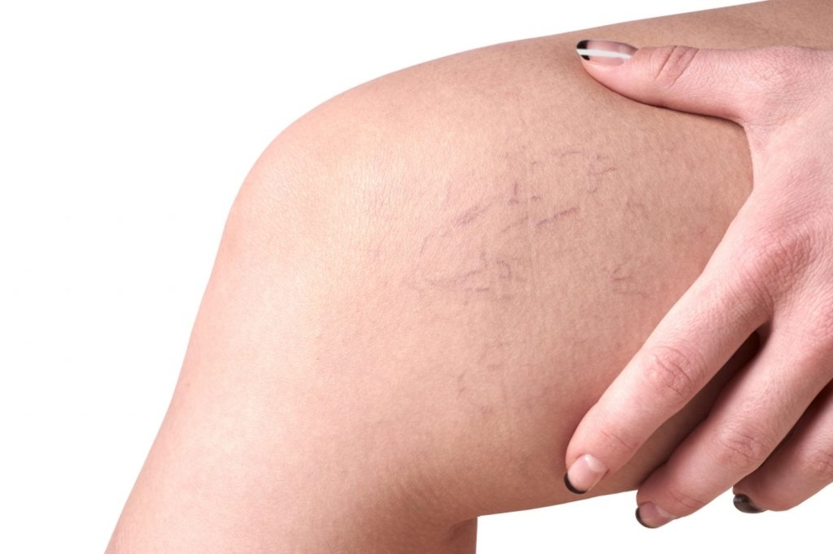 What are Spider Veins and How are They Treated?- AFYA Skin and Body Clinic