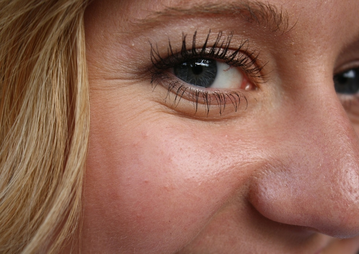 5 Ways to Reduce Eye Wrinkles and Fine Lines- AFYA Skin and Body Clinic