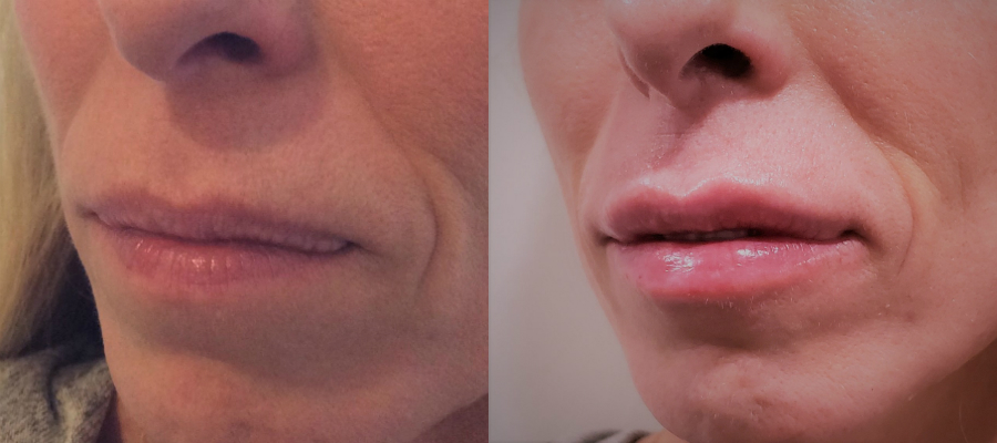 Afya lip fillers results